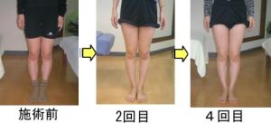 愛知県江南市のO脚矯正 施術効果