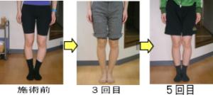 健康快復センター江南のO脚矯正の効果