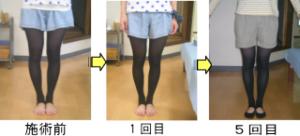 愛知県江南市のO脚矯正の効果