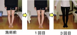 健康快復センター江南のO脚矯正 Before & After