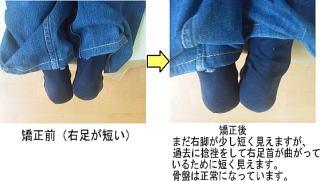 脚の歪みを骨盤矯正で改善