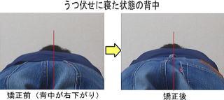 背中の歪みを背骨矯正で改善